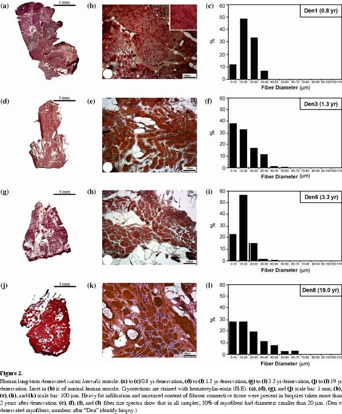 muscle biopsies show that fes of denervated muscles reverses human, Muscles