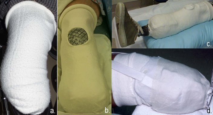 immediate post-operative prothesis Below-knee amputation (bka) may be used instead of elastic bandages an immediate post-operative prosthesis made with plaster or plastic may also be applied.