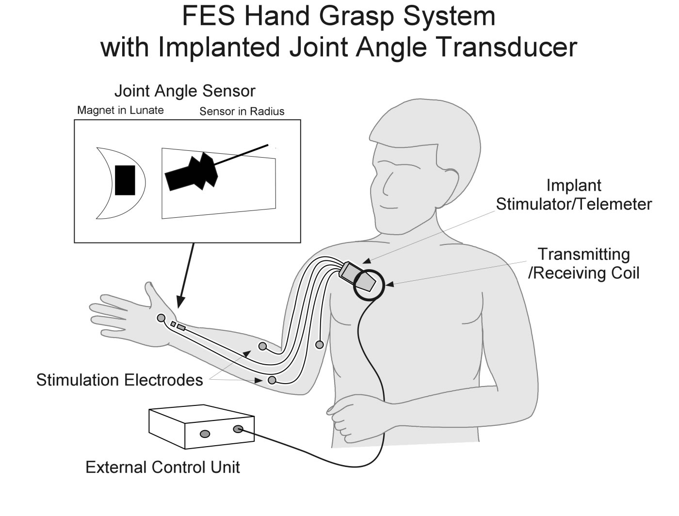 Implementation Of An Implantable Joint Angle Transducer Figure 1 Block Diagram The Emg Sensor Fes Hand Grasp System With Implanted Sensors Schematic