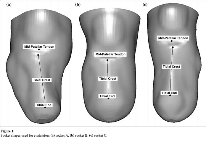 CAD/CAM transtibial prosthetic sockets from central fabrication