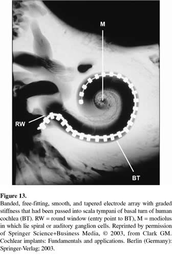 Personal reflections on the multichannel cochlear implant ...