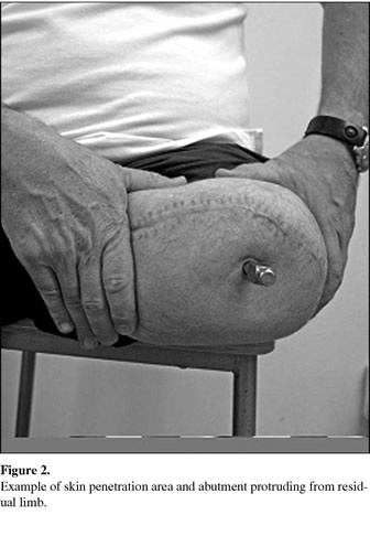 One Hundred Patients Treated With Osseointegrated Transfemoral Amputation Prostheses Rehabilitation Perspective