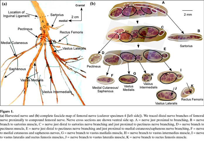 fascicular anatomy of human femoral nerve: implications for neural, Muscles