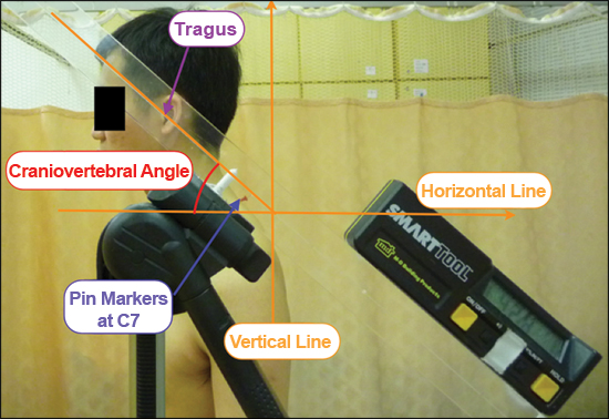At A Glance Measurement Of Craniovertebral Angle With