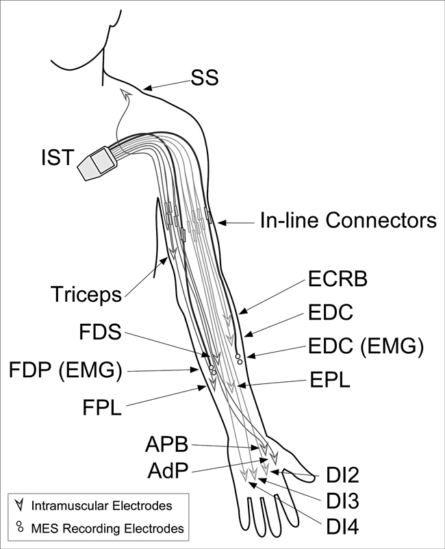 At A Glance Implanted Neuroprosthesis For Assisting Arm