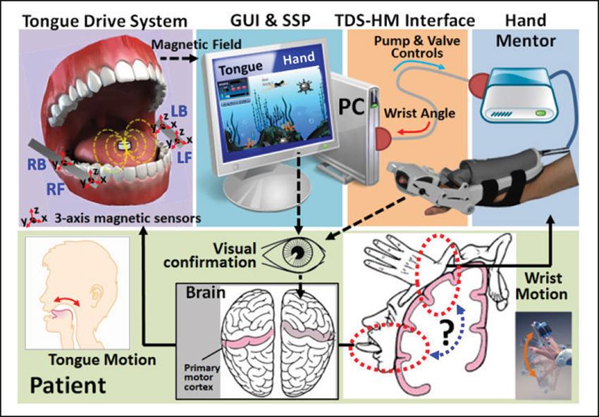 Tongue-controlled robotic rehabilitation: A feasibility